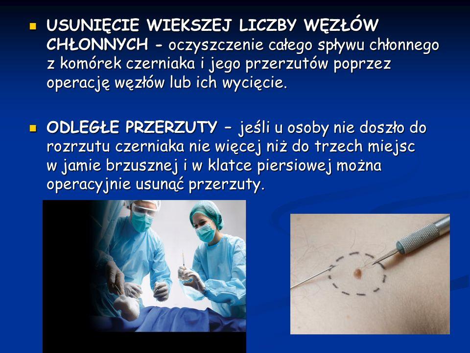 USUNIĘCIE WIEKSZEJ LICZBY WĘZŁÓW CHŁONNYCH - oczyszczenie całego spływu chłonnego z komórek czerniaka i jego przerzutów poprzez operację węzłów lub ich wycięcie.