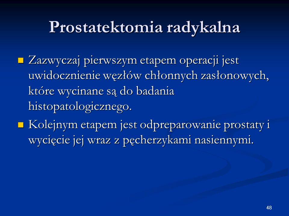 Prostatektomia radykalna