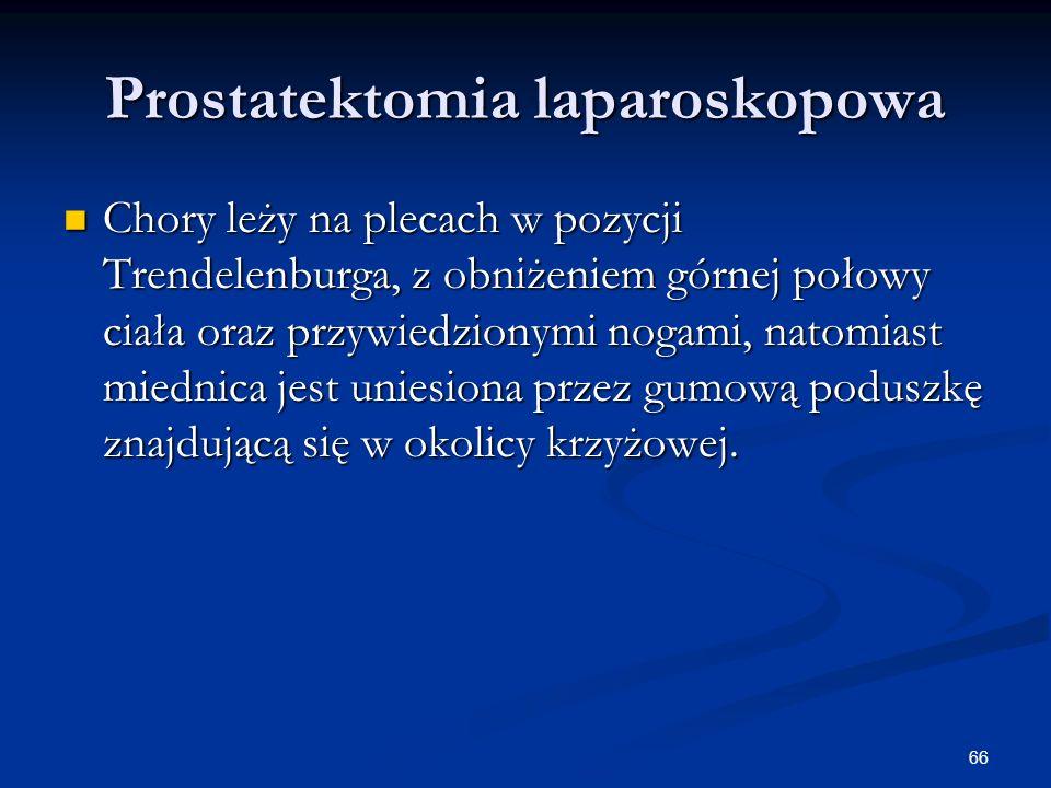 Prostatektomia laparoskopowa