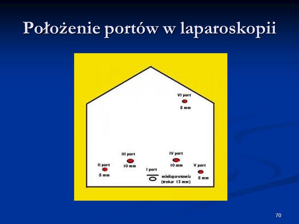 Położenie portów w laparoskopii