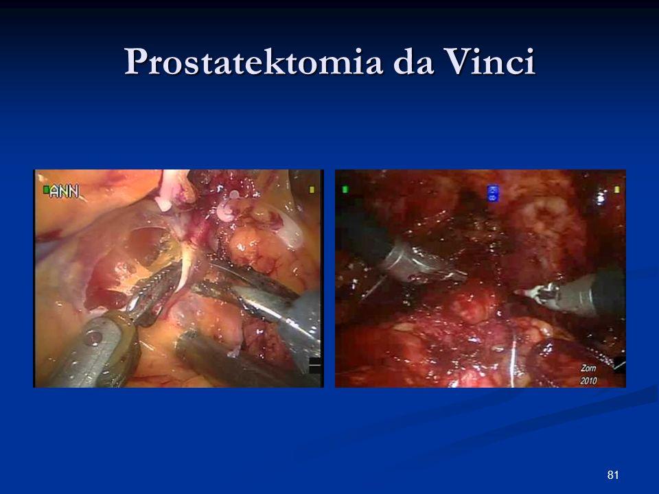 Prostatektomia da Vinci