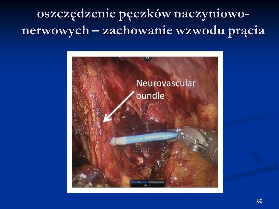 oszczędzenie pęczków naczyniowo- nerwowych – zachowanie wzwodu prącia