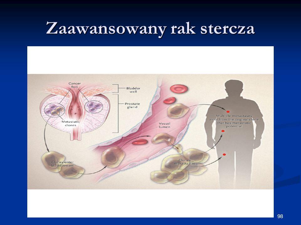 Zaawansowany rak stercza