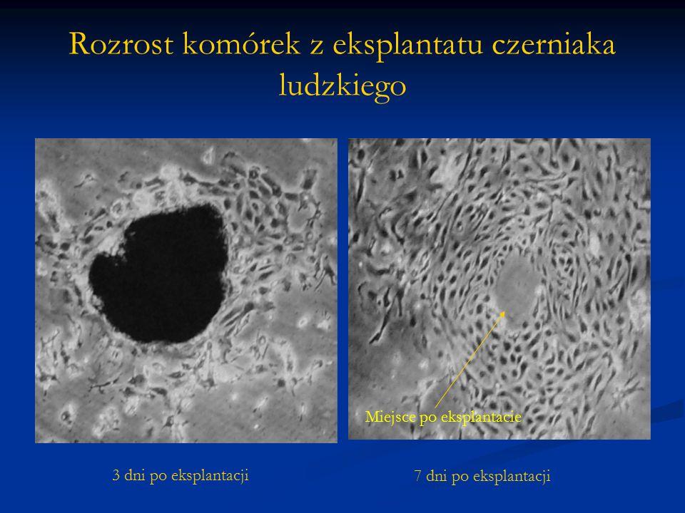 Rozrost komórek z eksplantatu czerniaka ludzkiego