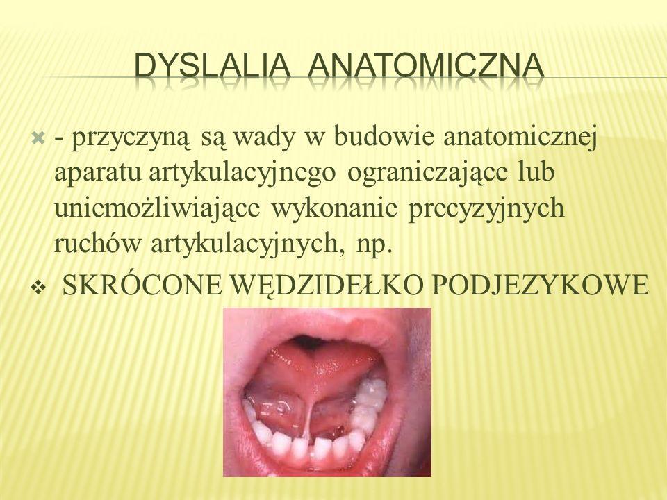 Dyslalia Anatomiczna