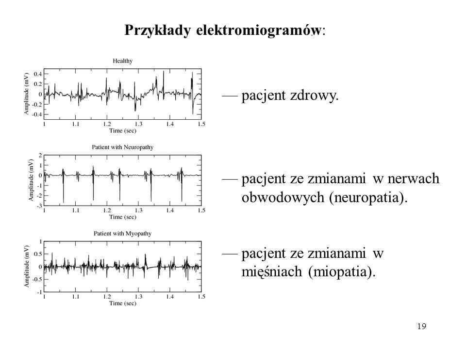 Przykłady elektromiogramów: