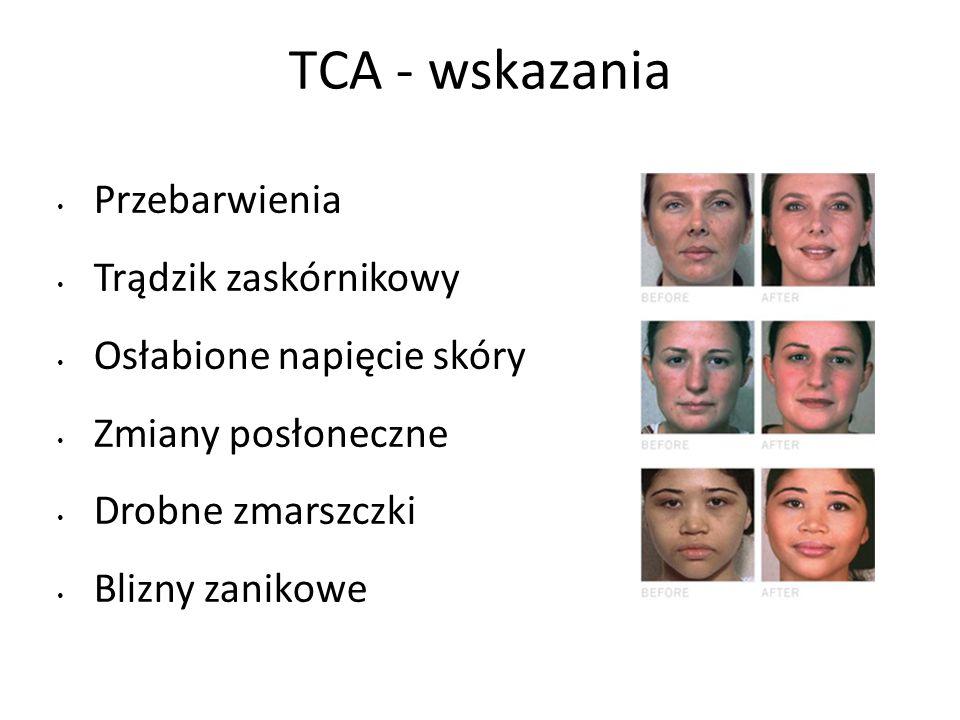 TCA - wskazania Przebarwienia Trądzik zaskórnikowy