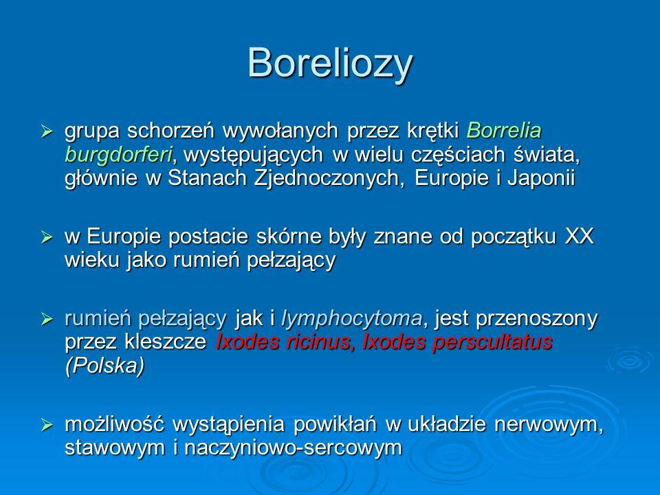 Boreliozy