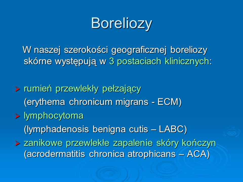 Boreliozy W naszej szerokości geograficznej boreliozy skórne występują w 3 postaciach klinicznych: rumień przewlekły pełzający.