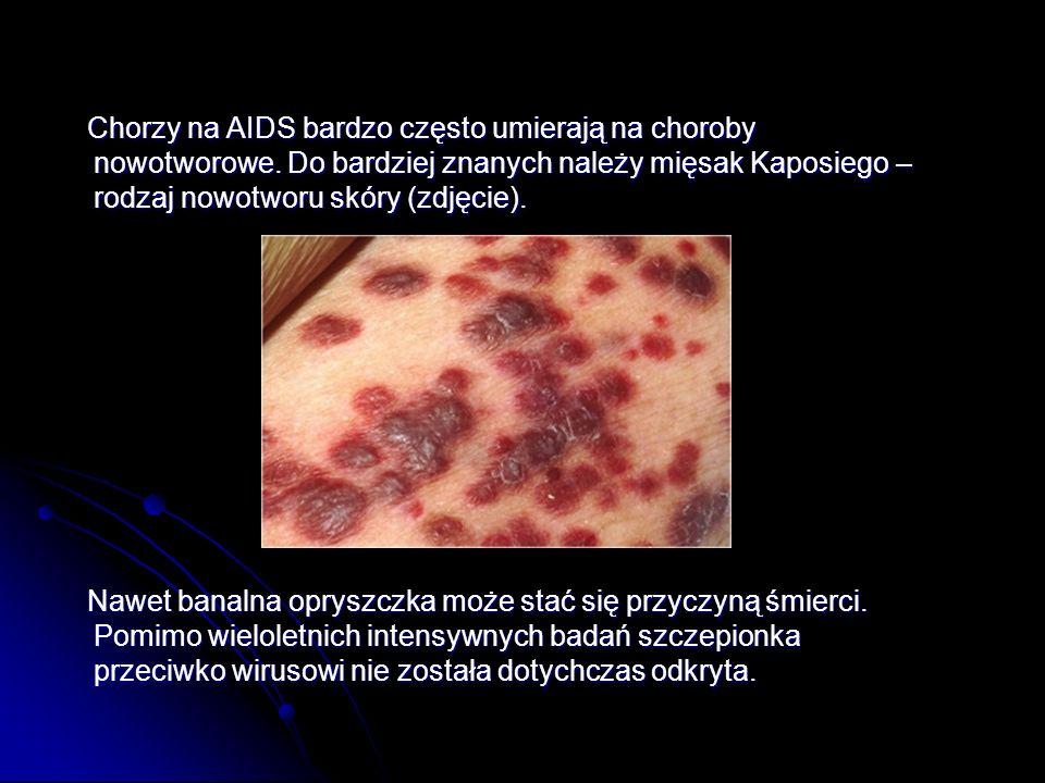 Chorzy na AIDS bardzo często umierają na choroby nowotworowe
