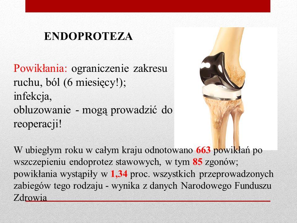 Powikłania: ograniczenie zakresu ruchu, ból (6 miesięcy!); infekcja,