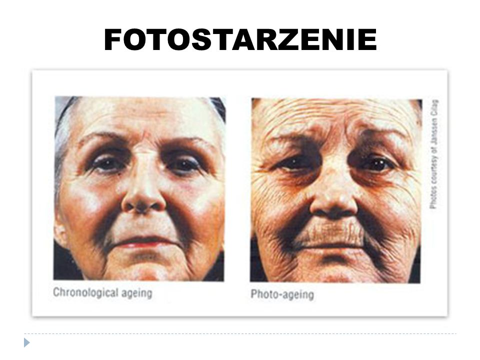 FOTOSTARZENIE