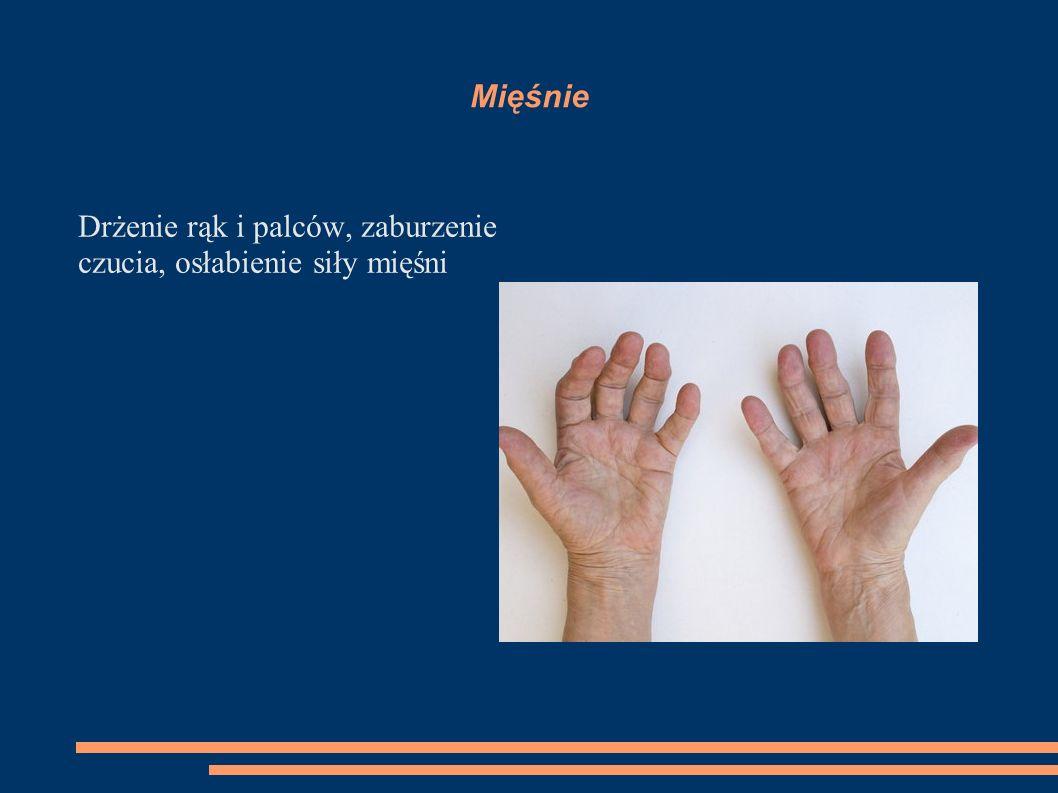Mięśnie Drżenie rąk i palców, zaburzenie czucia, osłabienie siły mięśni
