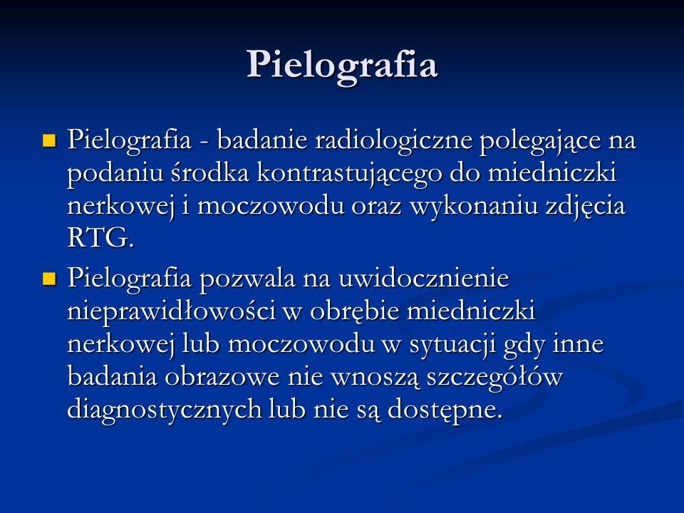 Pielografia