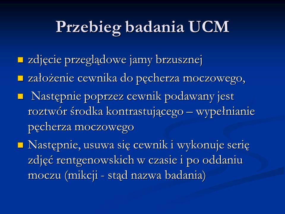 Przebieg badania UCM zdjęcie przeglądowe jamy brzusznej