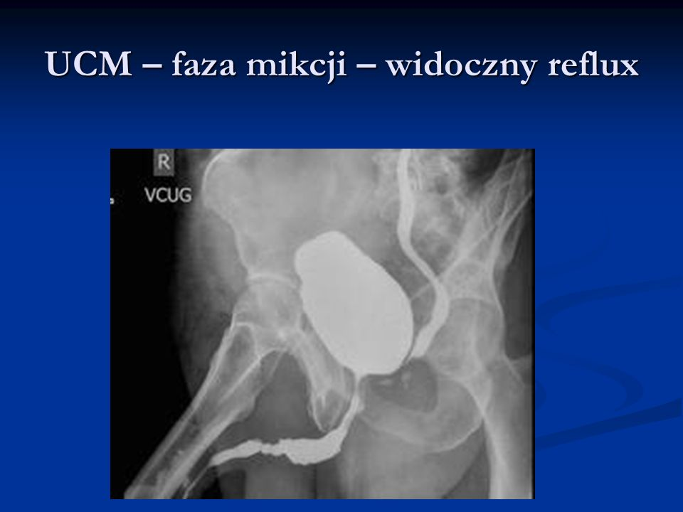 UCM – faza mikcji – widoczny reflux