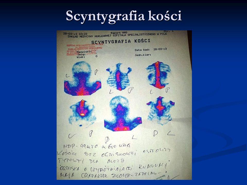 Scyntygrafia kości