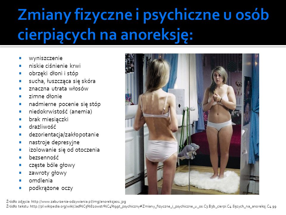 Zmiany fizyczne i psychiczne u osób cierpiących na anoreksję:
