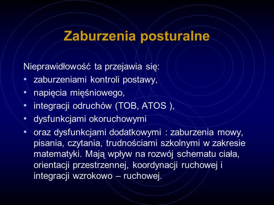 Zaburzenia posturalne