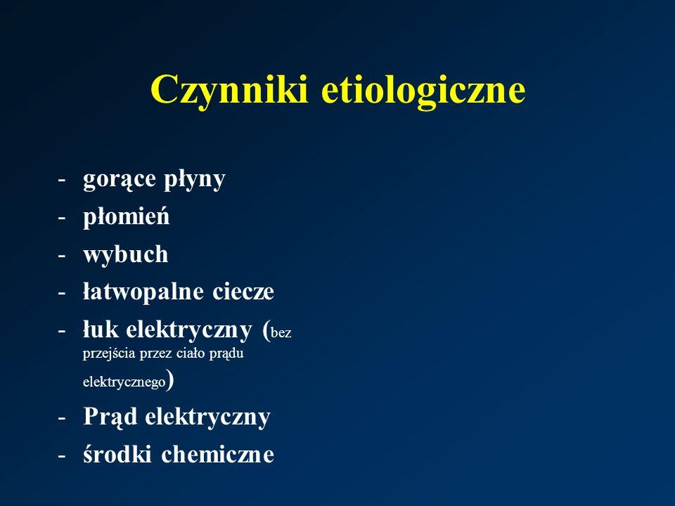 Czynniki etiologiczne