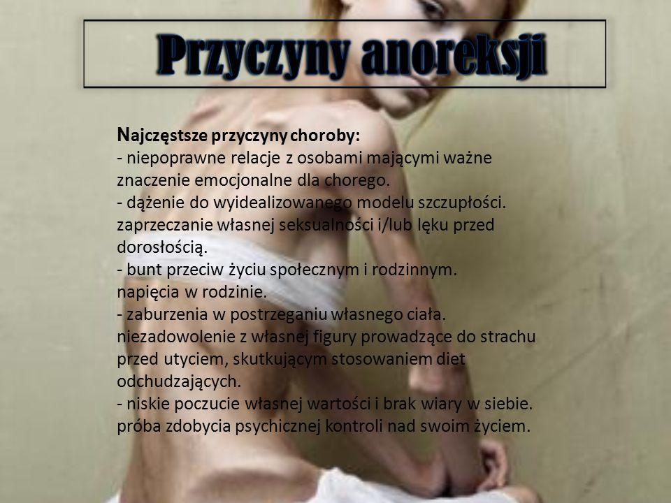 Przyczyny anoreksji Najczęstsze przyczyny choroby: