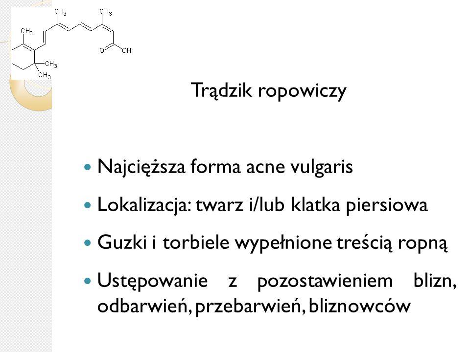 Trądzik ropowiczy Najcięższa forma acne vulgaris. Lokalizacja: twarz i/lub klatka piersiowa. Guzki i torbiele wypełnione treścią ropną.