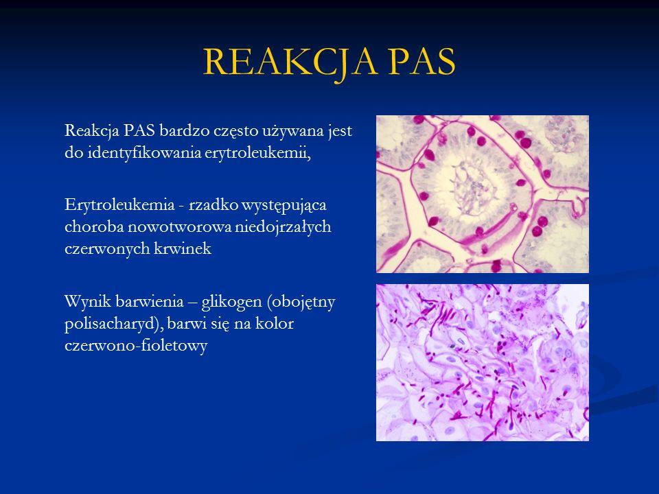 REAKCJA PAS Reakcja PAS bardzo często używana jest do identyfikowania erytroleukemii,