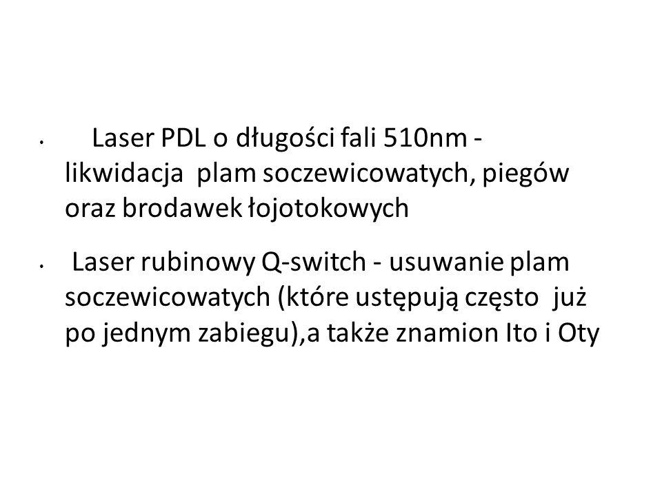 Laser PDL o długości fali 510nm - likwidacja plam soczewicowatych, piegów oraz brodawek łojotokowych