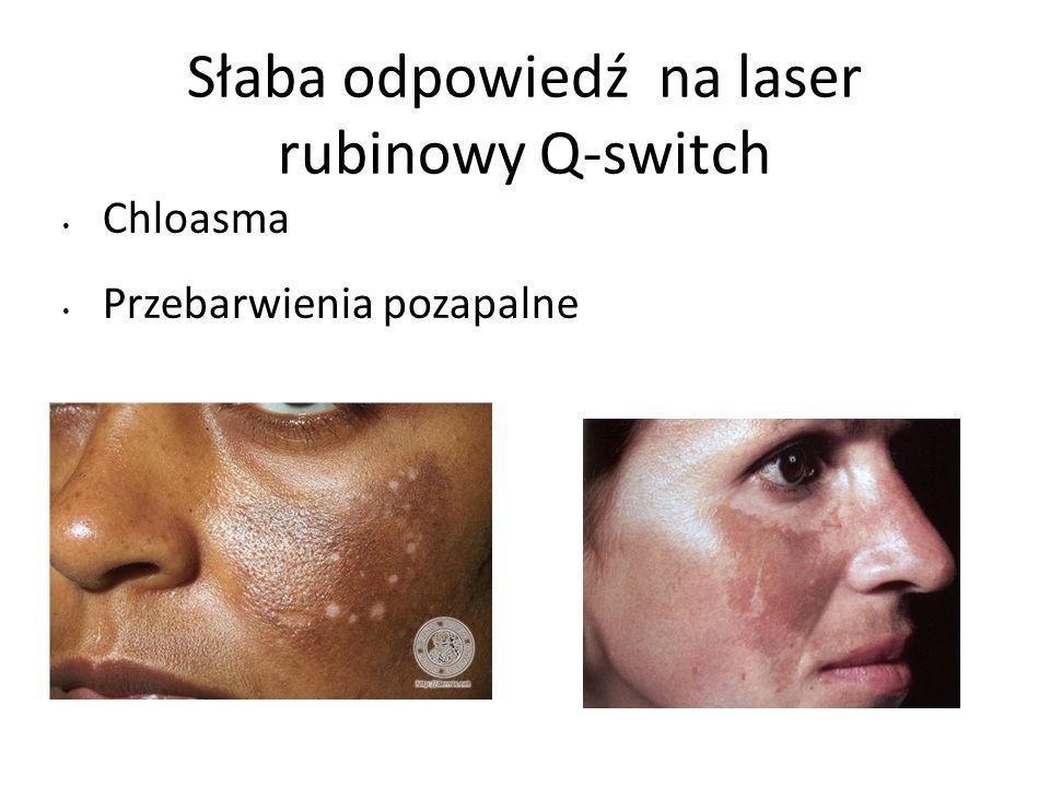 Słaba odpowiedź na laser rubinowy Q-switch