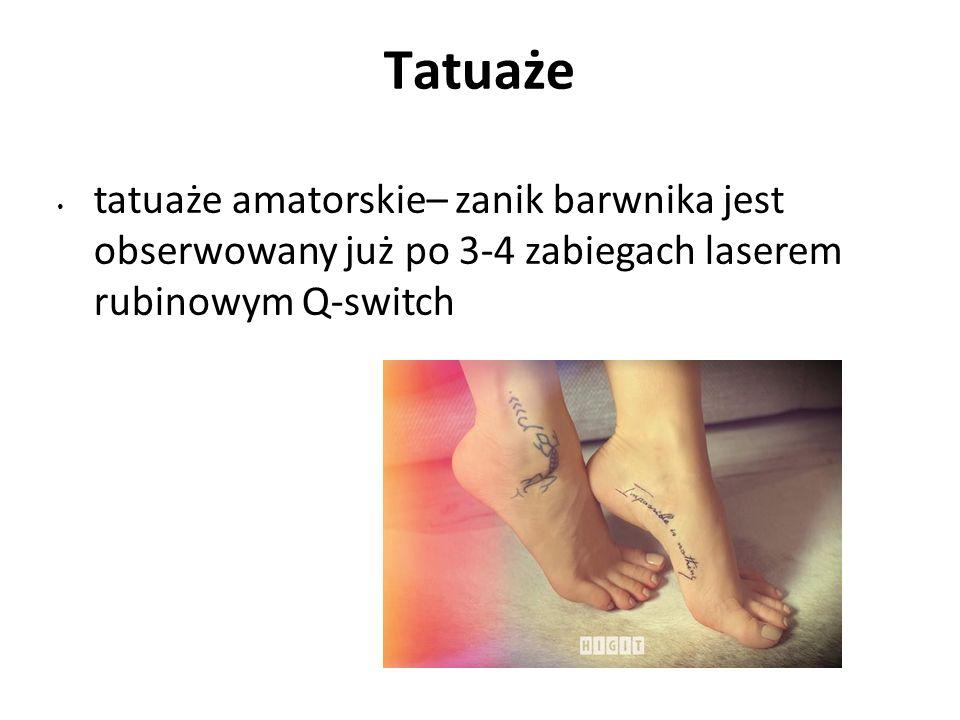 Tatuaże tatuaże amatorskie– zanik barwnika jest obserwowany już po 3-4 zabiegach laserem rubinowym Q-switch.
