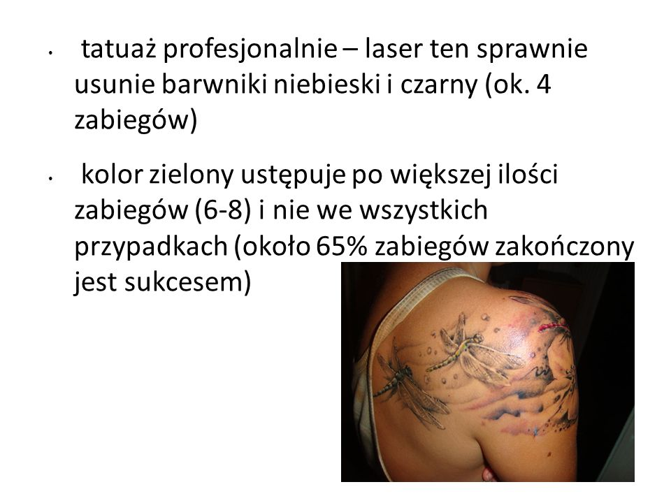 tatuaż profesjonalnie – laser ten sprawnie usunie barwniki niebieski i czarny (ok. 4 zabiegów)