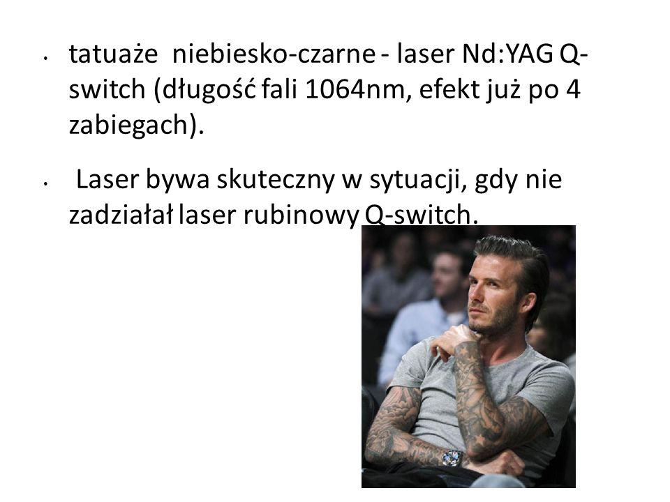 tatuaże niebiesko-czarne - laser Nd:YAG Q- switch (długość fali 1064nm, efekt już po 4 zabiegach).