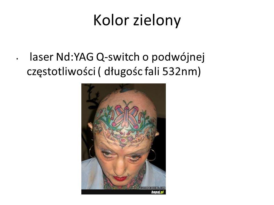 Kolor zielony laser Nd:YAG Q-switch o podwójnej częstotliwości ( długośc fali 532nm)