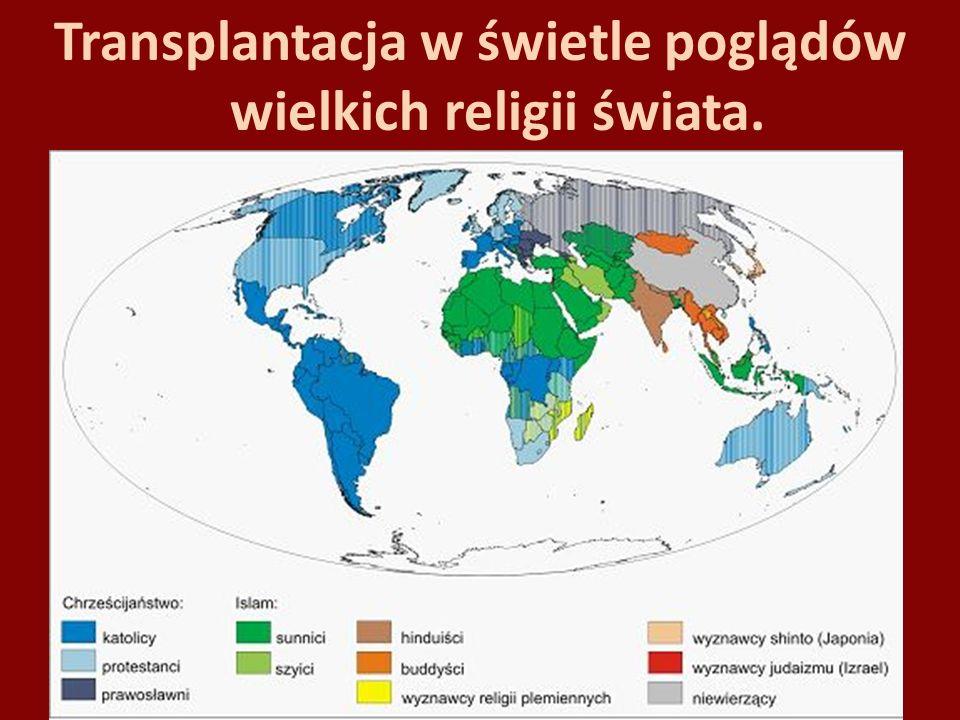 Transplantacja w świetle poglądów wielkich religii świata.