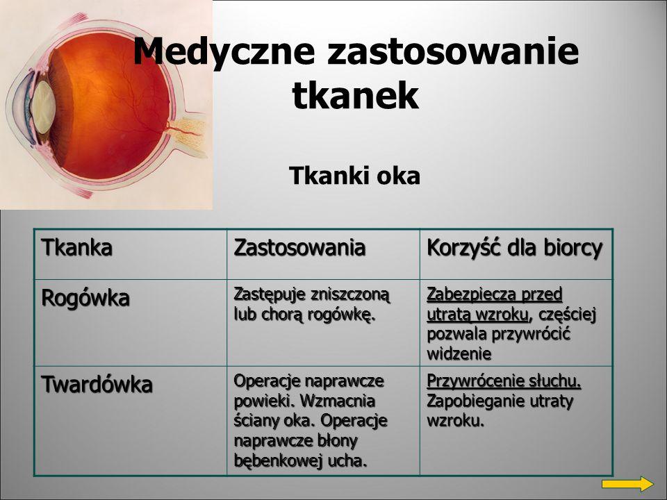 Medyczne zastosowanie tkanek Tkanki oka