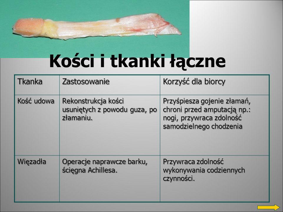 Kości i tkanki łączne Tkanka Zastosowanie Korzyść dla biorcy