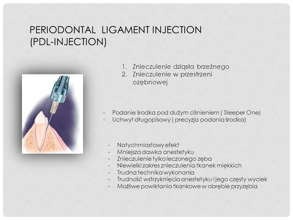 PERIODONTAL LIGAMENT INJECTION (PDL-INJECTION)
