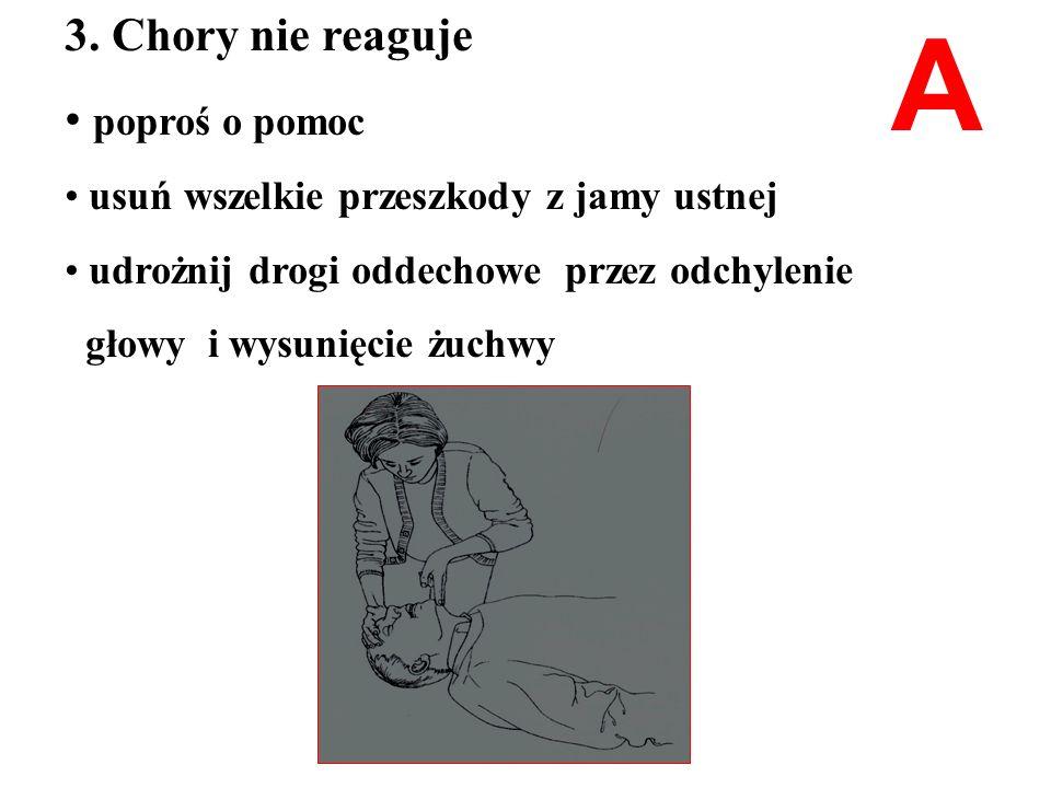 A 3. Chory nie reaguje poproś o pomoc