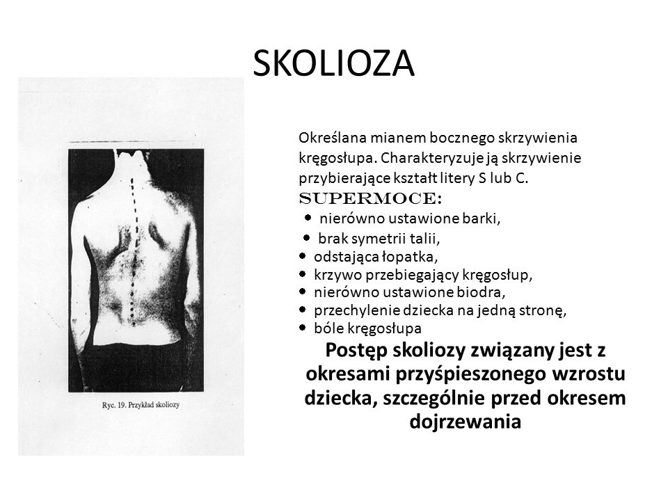 SKOLIOZA Określana mianem bocznego skrzywienia kręgosłupa. Charakteryzuje ją skrzywienie przybierające kształt litery S lub C.
