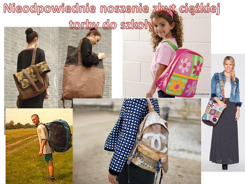 Nieodpowiednie noszenie zbyt ciężkiej torby do szkoły