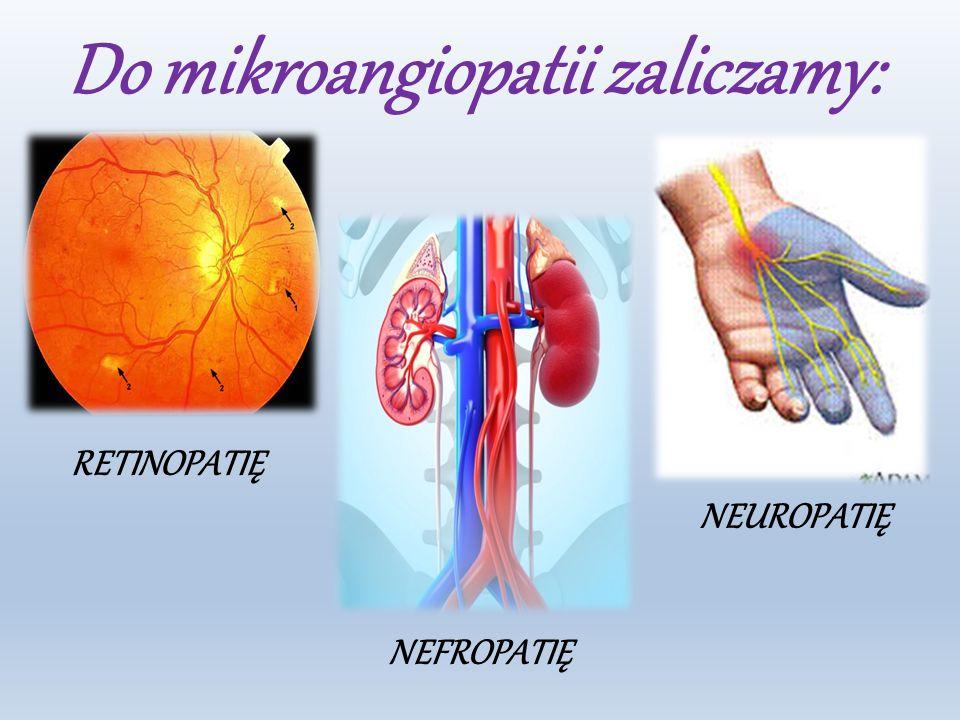 Do mikroangiopatii zaliczamy: