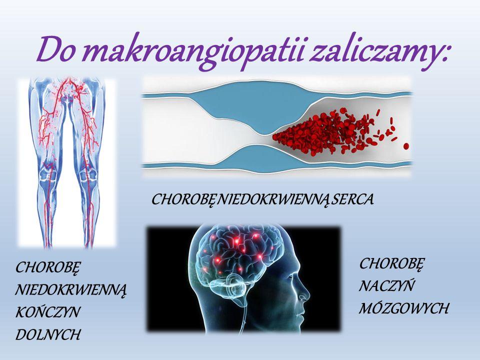 Do makroangiopatii zaliczamy: