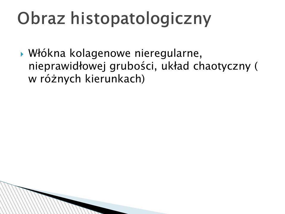 Obraz histopatologiczny