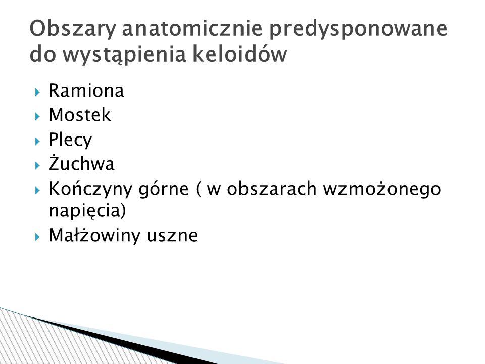 Obszary anatomicznie predysponowane do wystąpienia keloidów