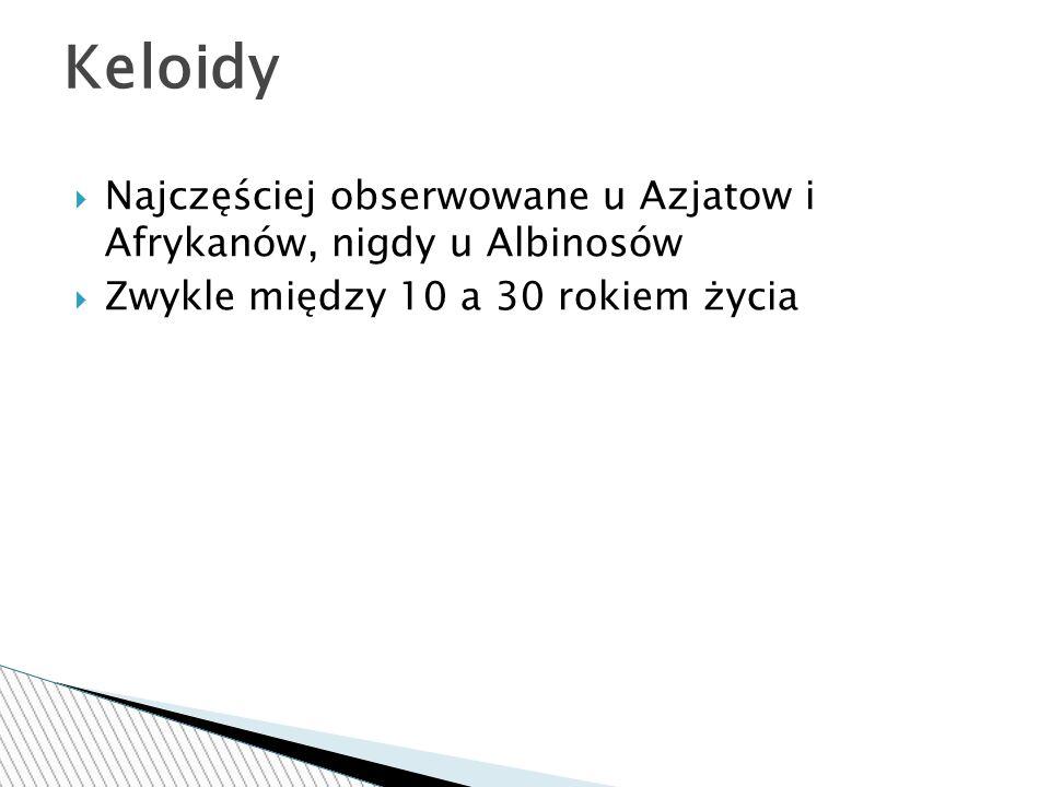 Keloidy Najczęściej obserwowane u Azjatow i Afrykanów, nigdy u Albinosów.