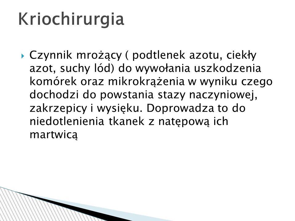 Kriochirurgia