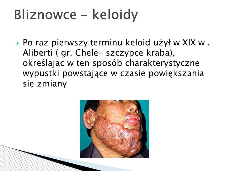 Bliznowce - keloidy