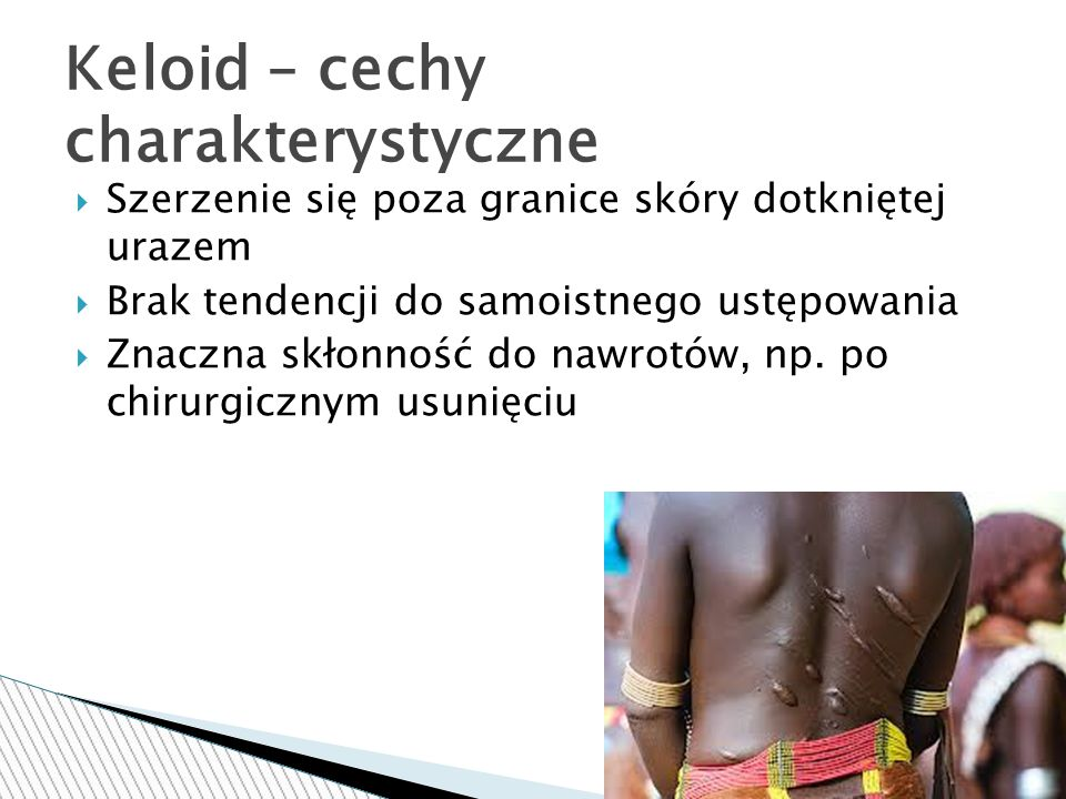 Keloid – cechy charakterystyczne