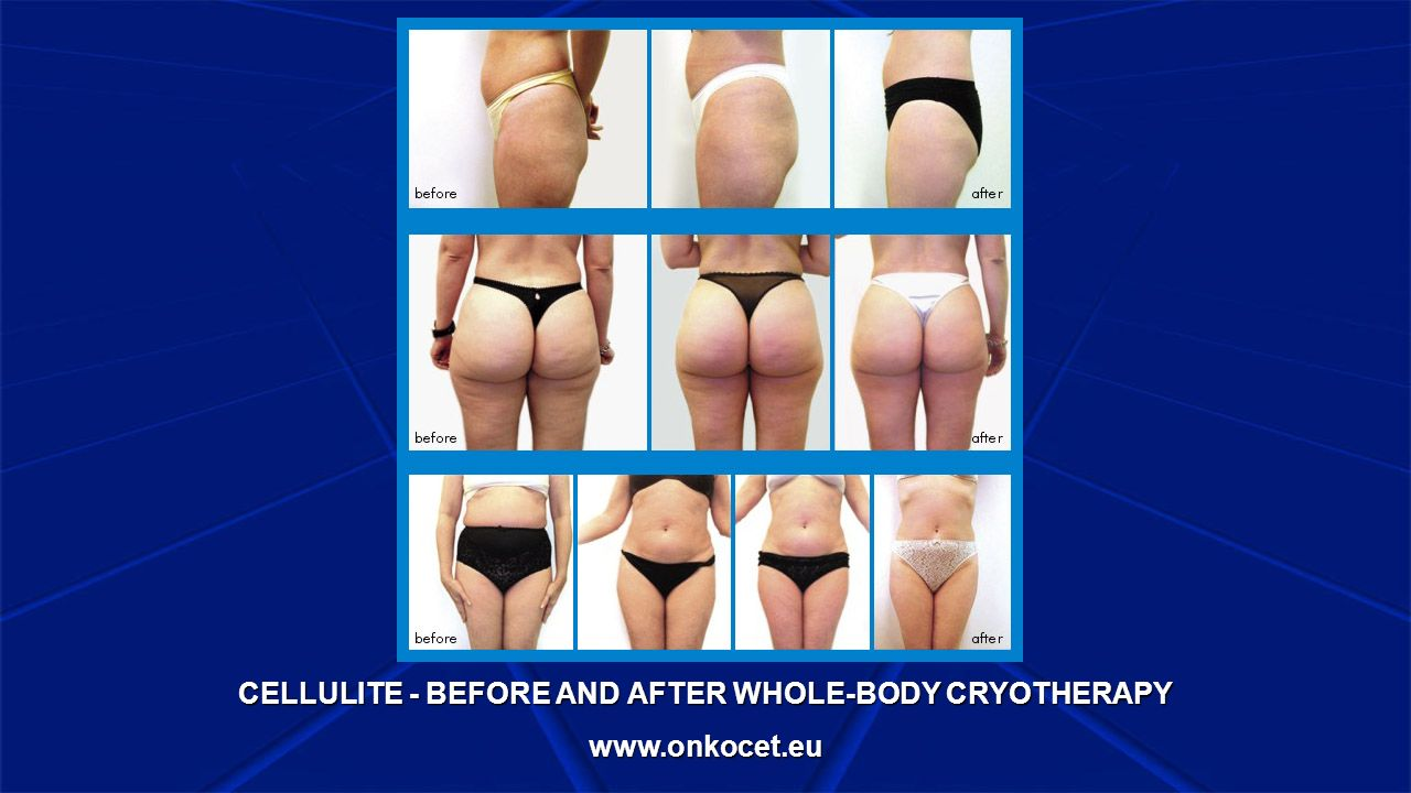 CELLULITE - BEFORE AND AFTER WHOLE-BODY CRYOTHERAPY