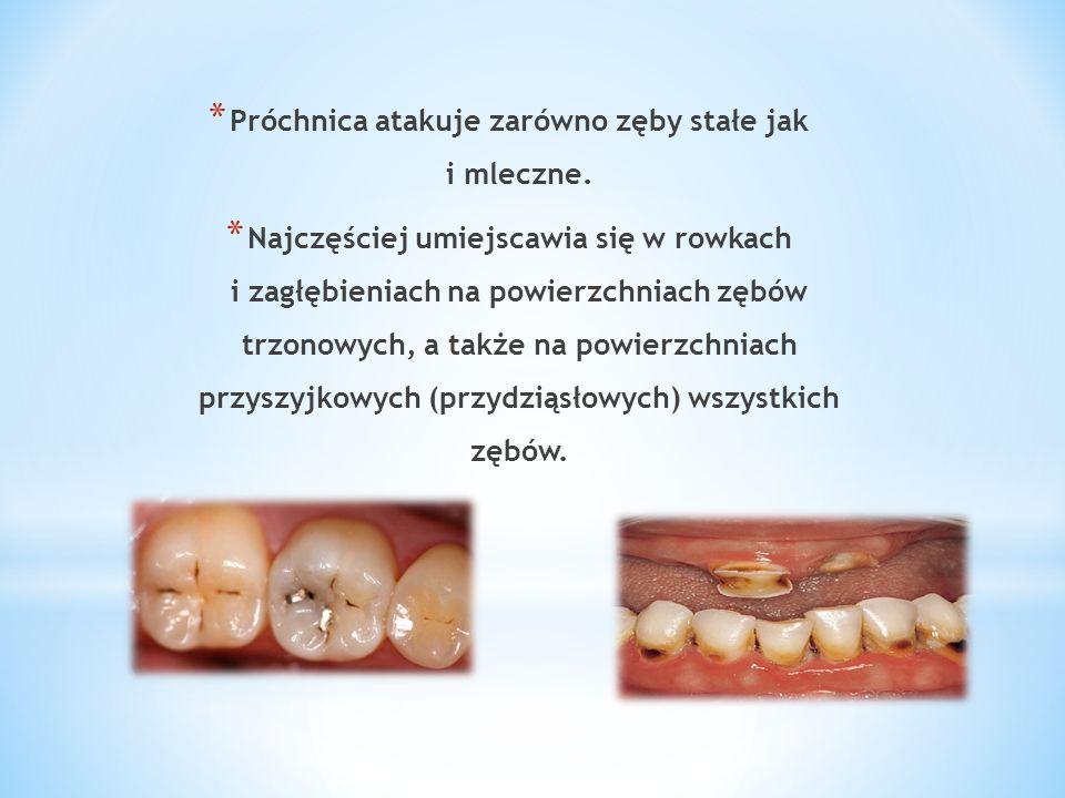 Próchnica atakuje zarówno zęby stałe jak i mleczne.
